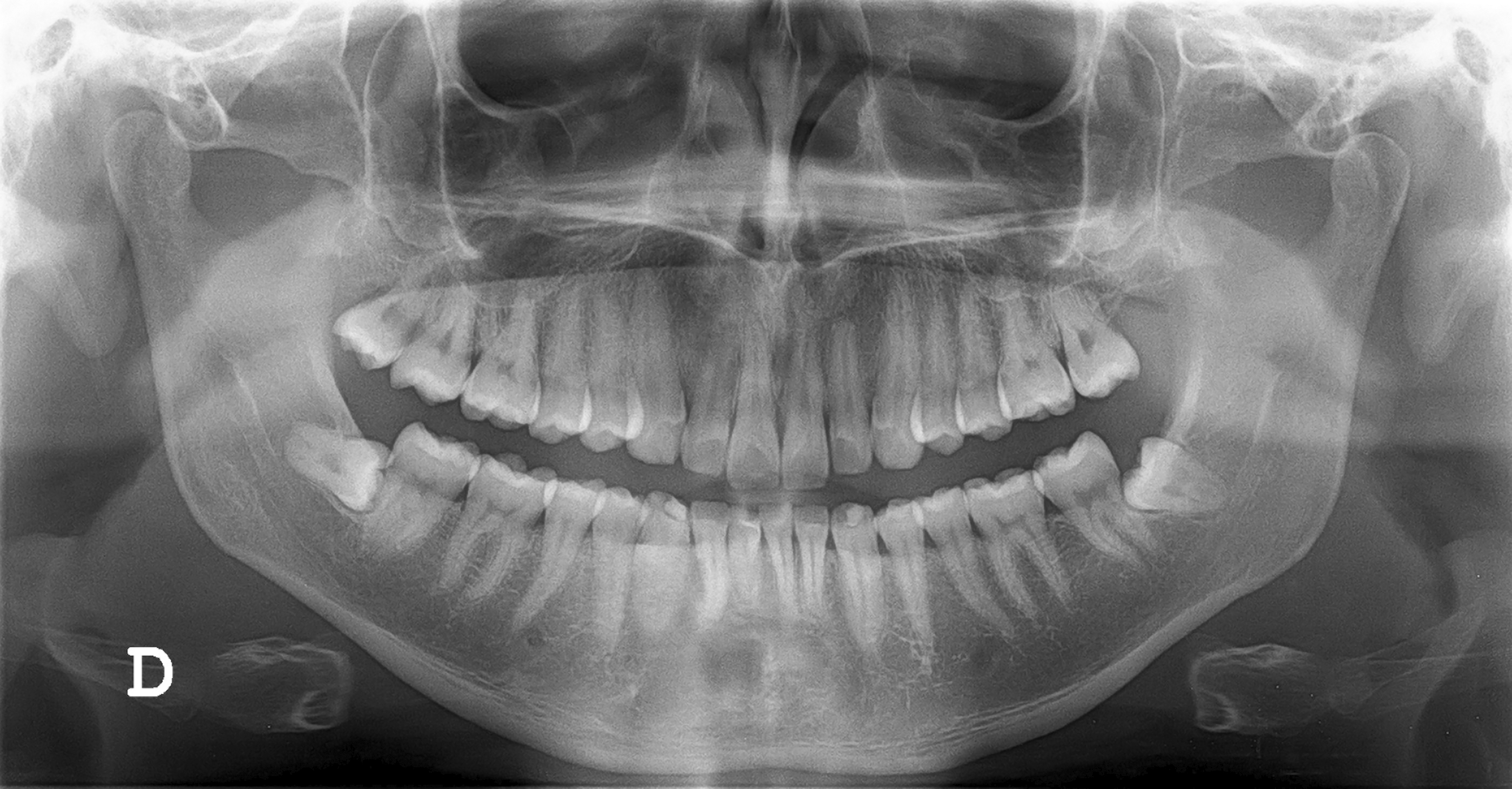 How to Choose an Oral Radiologist How to Choose an Oral Radiologist new images
