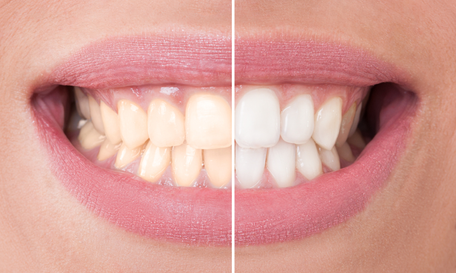 Teeth Whitening Home Remedies Dental Assistants Can Share With