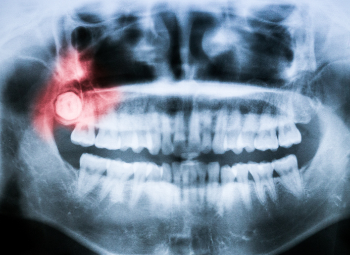 Wisdom teeth can cause damage to surrounding teeth and tissue