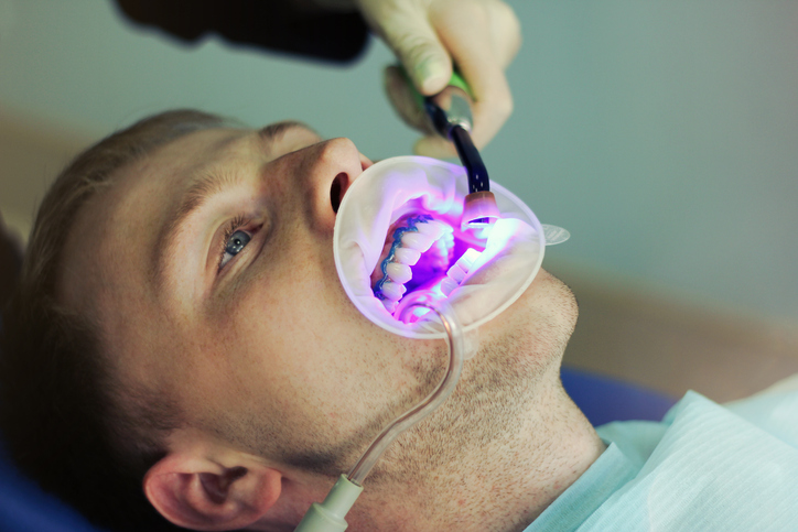 Dental Assistant School: A Brief History of Tooth Whitening