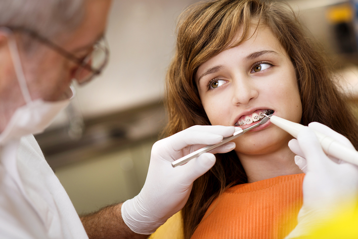 Braces vs Liners: A Look at What Students in Dental Assistant