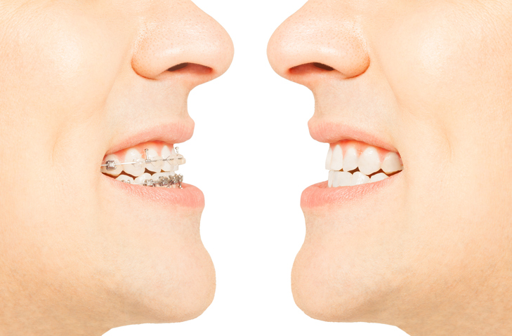 Braces Vs Liners A Look At What Students In Dental Assistant Training Need To Know