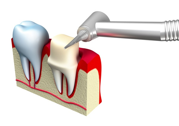 A temporary restoration is applied to the prepared tooth (right)