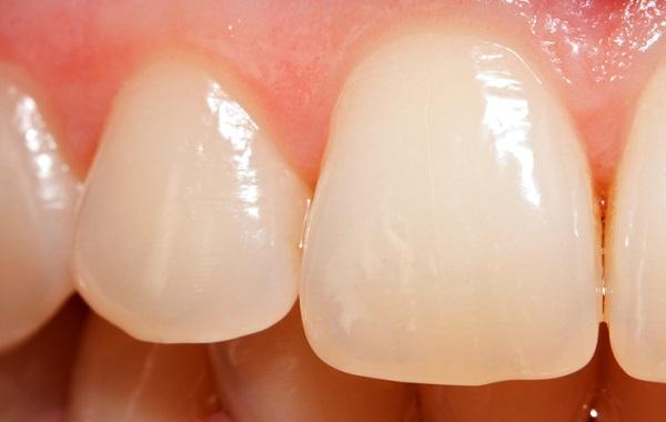 Milk caseins are great for strengthening enamel