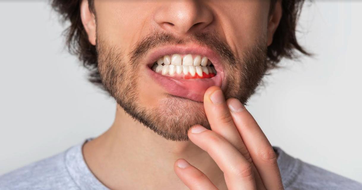 dental hygienist school